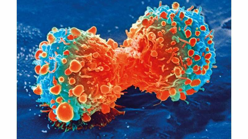An unexpected, and novel, target for prostate cancer—our biological clock